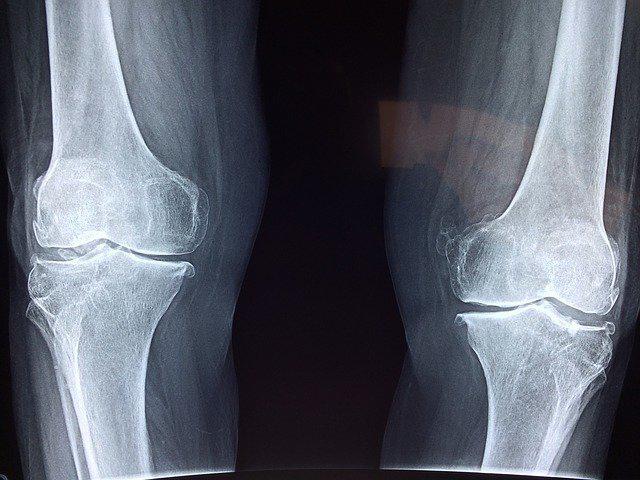 Better Bone Health